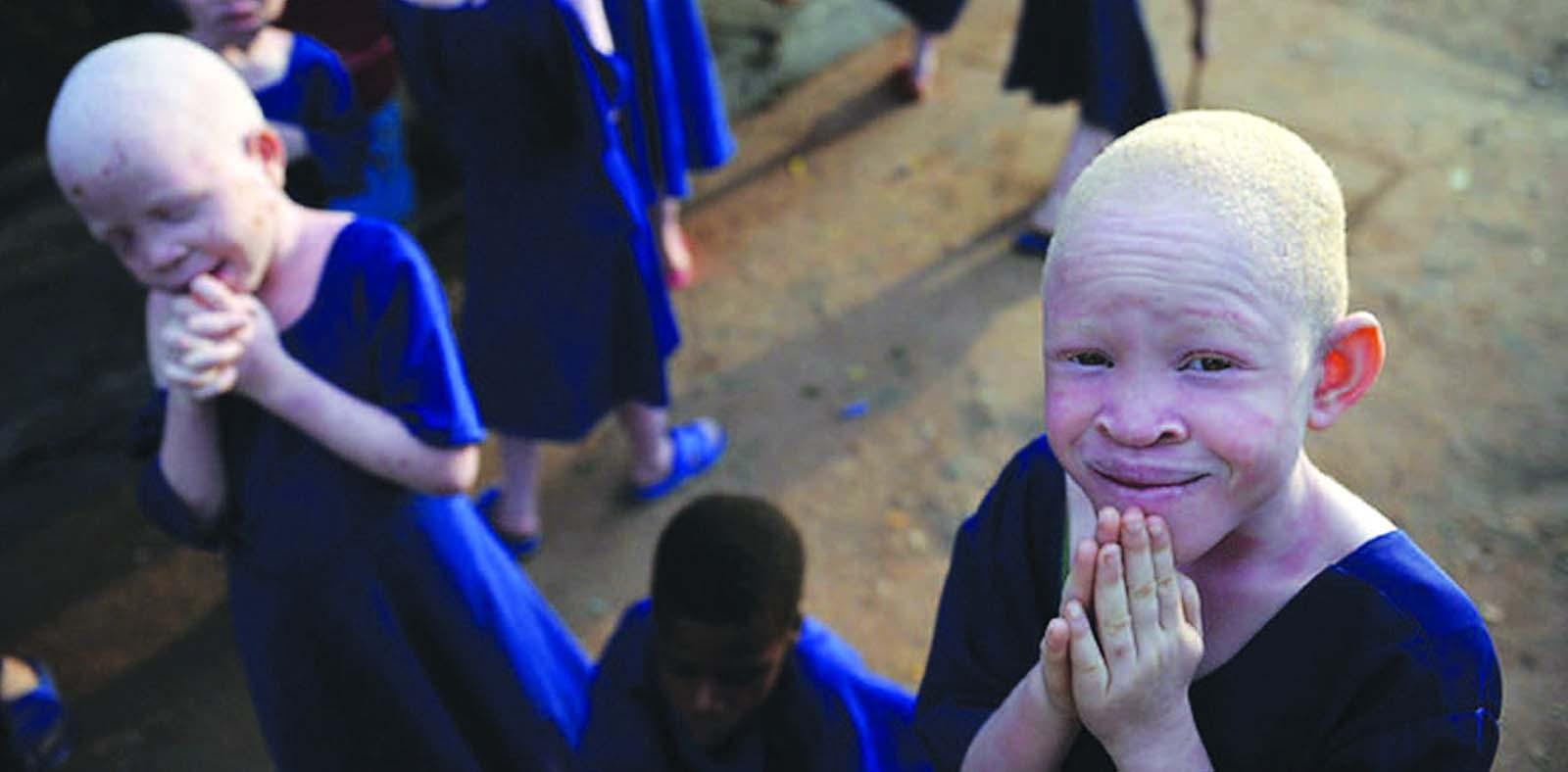 albinisim-in-africa_blog-swaliafrica-com-_